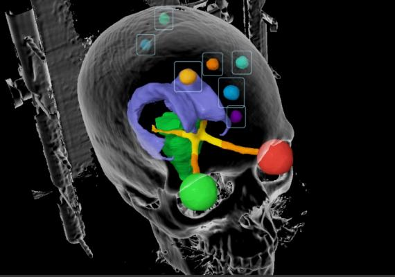 brain metastases, cancer, survey, UCLA, Dr. Percy Lee, whole brain radiotherapy, stereotactic radiosurgery