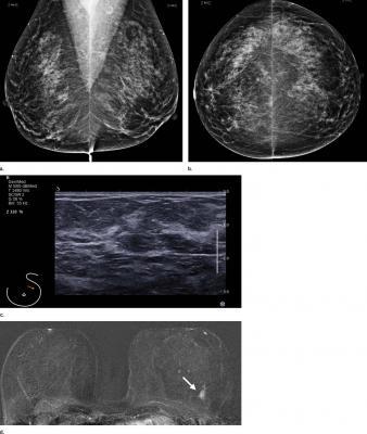 Radiology journal, breast MRI screening, average risk women, breast cancer