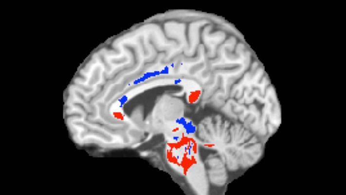 concussion outcomes, MRI, DTI, diffusion tensor imaging, Albert Einstein College of Medicine, Montefiore