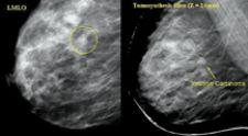 Aurora Imaging Technology Inc. developed MRI for the breast to assist in early detection of breast cancer.