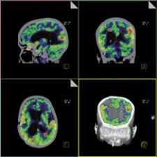This image, acquired on Siemens' Biograph PET/CT, shows intracerebral metastases.