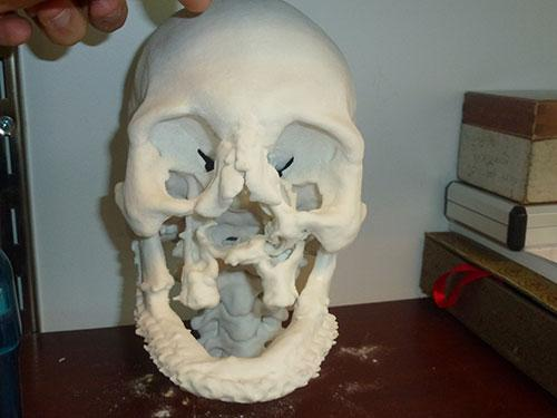 3-D printed model to guide face transplant