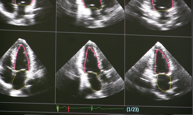 Philips Epiq Ultrasound uses artificial intelligence to automate standard echo views.