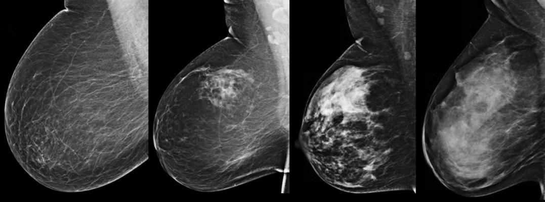 dense breast tissue, dense breast imaging, BIRADS, BI-RADS, mammography grading system, comparison of dense breast tissue, Fibroglandular densities