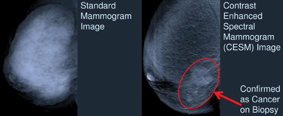 imaging radiology Breast