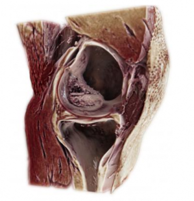 Siemens Healthineers debuted GOKnee3D, a magnetic resonance imaging (MRI) application that drastically shortens the time required to perform comprehensive diagnostic exams of the knee.