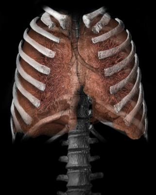 Study Confirms CT Lung Cancer Screening is Cost-Effective: Full Medicare Coverage Should Follow, Says ACR