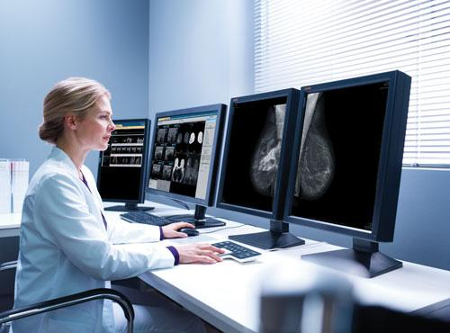 conflicting information surrounding screening mammography, breast screening guidelines, debate over mammography guidelines,