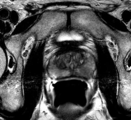 Prostate Biopsy Ultrasound MRI Rush Medical Center Chicago