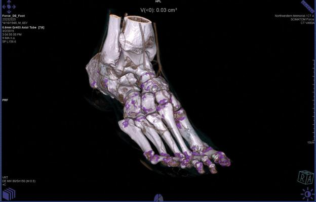 CT Spectral imaging of a foot showing gout. The image was made on a Somatom Force dual energy CT system.