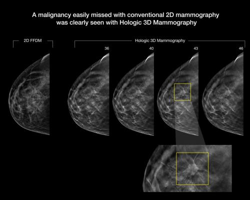 There is a rapid adoption of 3D Breast tomosynthesis imaging systems.