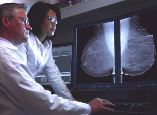 digital breast tomosynthesis, DBT, long-term study, Perelman School of Medicine