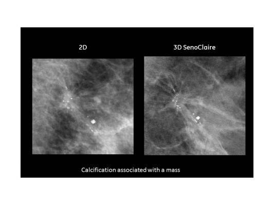 GE, SenoClaire, mammography, 3-D breast imaging, tomosynthesis, dense breast tissue