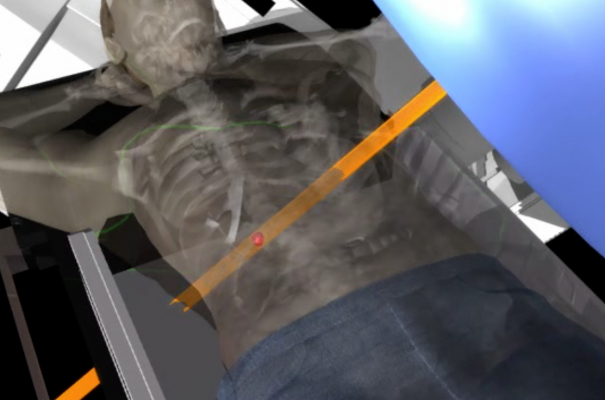 Fraunhofer MEVIS, radiation therapy efficiency, SPARTA project