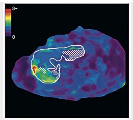 UC San Diego study, liver fibrosis, MRE, magnetic resonance elastography
