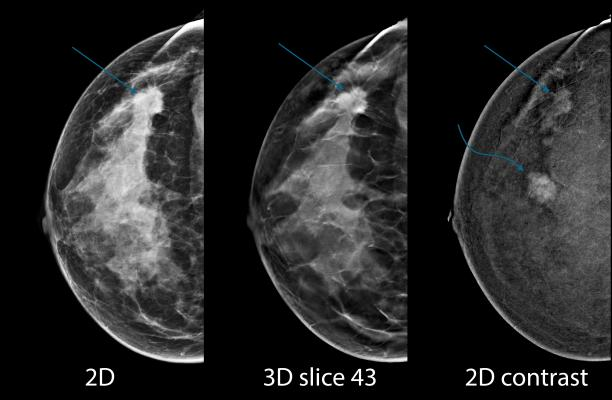 digital breast tomosynthesis, DBT, synthesized 2-D mammography, S2D, screening recall rates, Radiology journal study