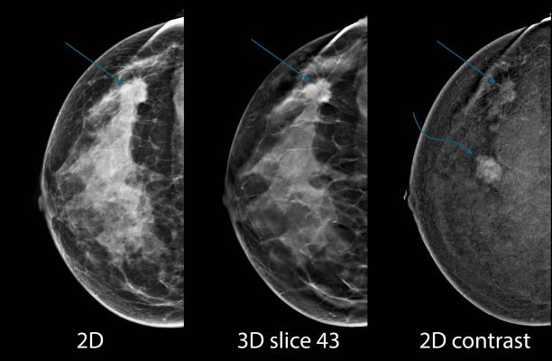Machine Learning Identifies Breast Lesions Likely to Become Cancer