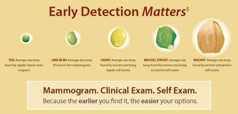 Four compelling reasons to begin annual mammograms at 40