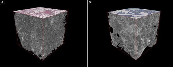 microfocus CT, University of Southampton study, IPF, 3-D imaging, lung disease