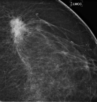 Navidea, Lymphoseek injection, breast cancer detction, scintigraphy, SNMMI 2016