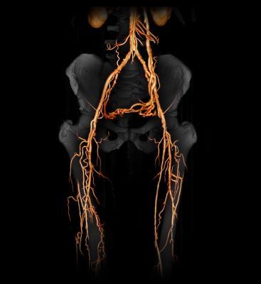ACR, American College of Radiology, MEDCAC, peripheral arterial disease, PAD, seniors