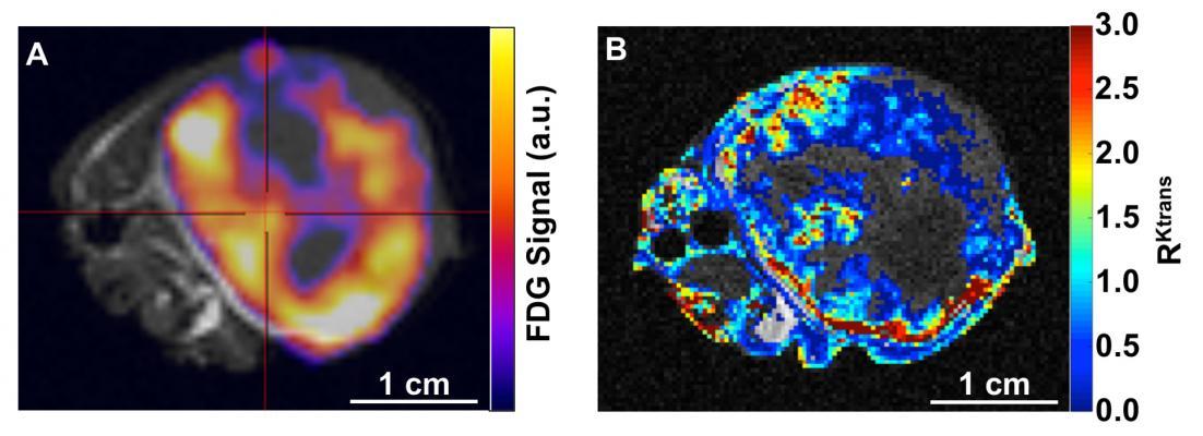 University of Arizona, Cubresa, NuPET, PET/MRI scanner installed, tumor assessment
