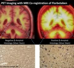Alzheimer's Disease Clinical Trial/Study PET Systems MRI