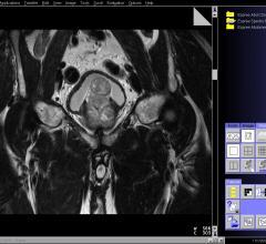 UCLA, prostate cancer, radiation therapy, study