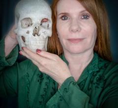 3-D printing, eyesight, tumor, Michael Balzer, wife