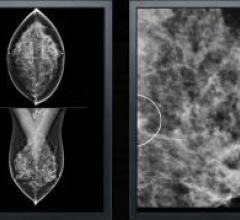 VuComp, M-Vu CAD, digital breast tomosynthesis, DBT