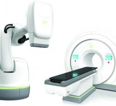 First Hospitals Achieve Inter-System Connectivity Across Accuray Radiation Therapy Platforms