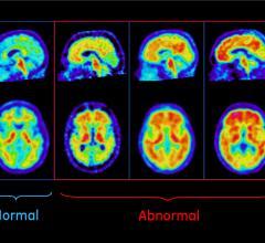Alzheimer's disease, IDEAS study, patient enrollment open, amyloid PET scan