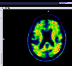 Alzheimer's disease, oligomers, amyloid plaque, bifunctional chemical agents, Washington University in St. Louis