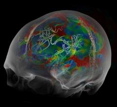 brain scans, neuroimaging, psychotherapy response, anxiety and depression, Harvard Reviw of Psychiatry