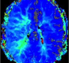 psychotic patients, brain activity, movie viewing, fMRI, Alice in Wonderland, ECNP