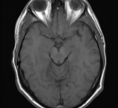 Oxford University Research Brain MRI Resting-state fMRI Parkinson's
