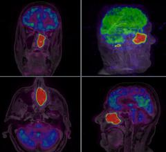 Medraysintell, SNMMI 2016, nuclear imaging reports