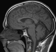 MRI, improves diagnosis, microbleeding, traumatic brain injury, TBI, military, Radiology, microhemorrhages
