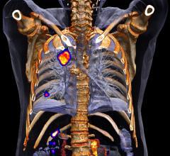 HealthMyne Inc, Moffitt Cancer Center, imaging analytics technology agreement, thoracic oncology