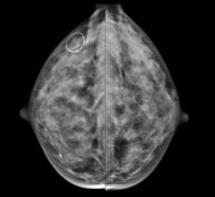 dense breast tissue, contralateral breast cancer, MD Anderson study, Cancer journal