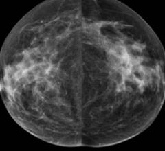 Densitas Receives FDA Clearance for PACS-Centric Breast Density Software