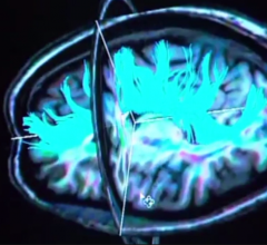 Brain's Appetite Regulator Disrupted in Obese Teens