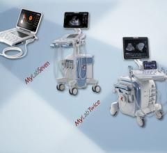 Esaote Launches Crystaline Ultrasound Technology at ECR 2014