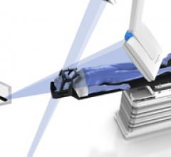 Enhanced Patient Positioning System Aids Image Guided Radiation Therapy