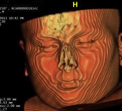CT scan, pediatrics