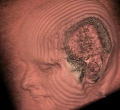 MRI, cardiovascular risk factors, Alzheimer's disease, early predictors
