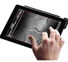 MobileView is a tablet based viewer