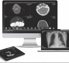 Diagnostic Centers of America Selects Intelerad's Medical Imaging Platform
