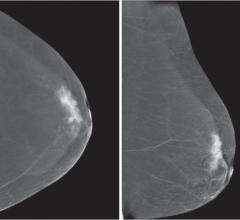 JAMA Article Advocates Making Individualized Choices About Breast Cancer Screening