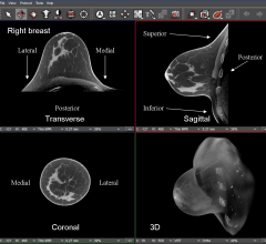 breast density, computed tomography